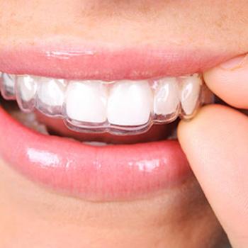 ortodoncia en murcia